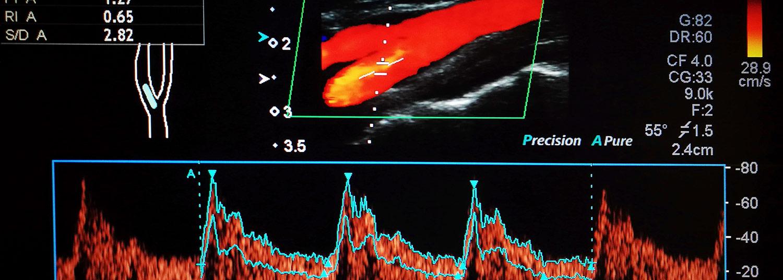 Vascular Imaging Banner04