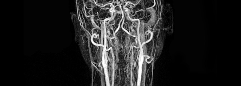 Vascular Imaging Banner05