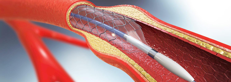 Vascular Research Banner03