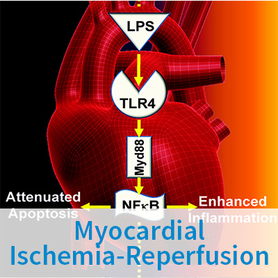 Myocardial Ischemia-Reperfusion