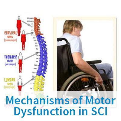 Mechanisms of Motor Dysfunction in SCI