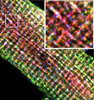 Closeup of membrane
