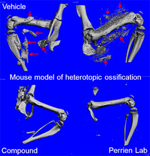 Mouse model of heterotopic ossification