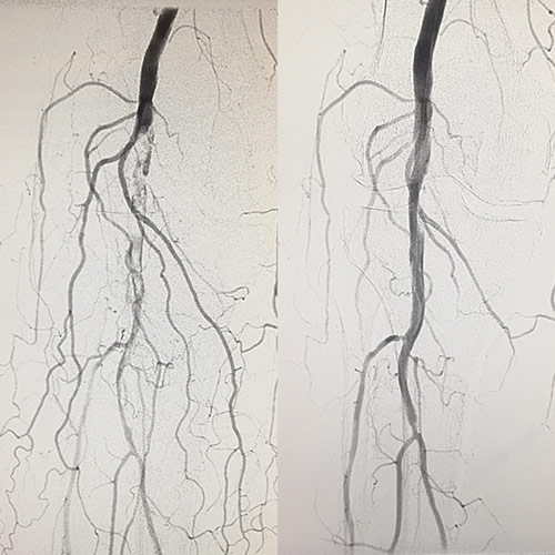 Angiograms before and after outpatient minimally-invasive treatment showing improved blood flow.