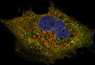 SARS-COV-2 Orf6 protein (red) in a mammalian cell. Credit: Dr. Zhe Han