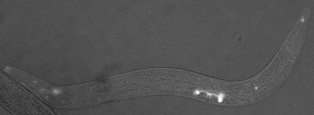 Glowing sensory cells in the worm that make complement factor H protein. Credit: PNAS