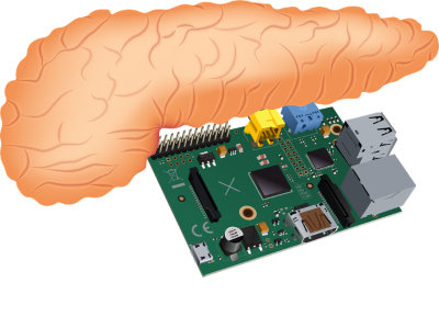 illustration of a pancreas above a computer chip board