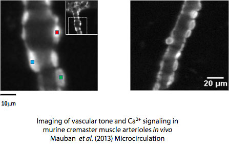 Vascular Tone Image